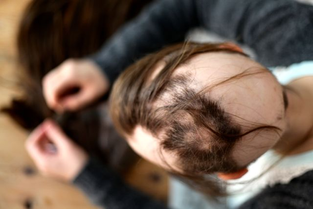 Alopecia1_1